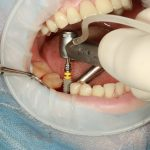 Why Dental Implants are Important for People with Missing Teeth